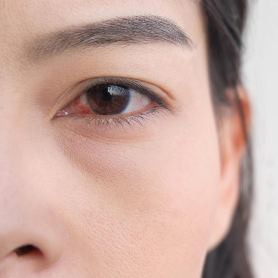 アレルギー 目の腫れ