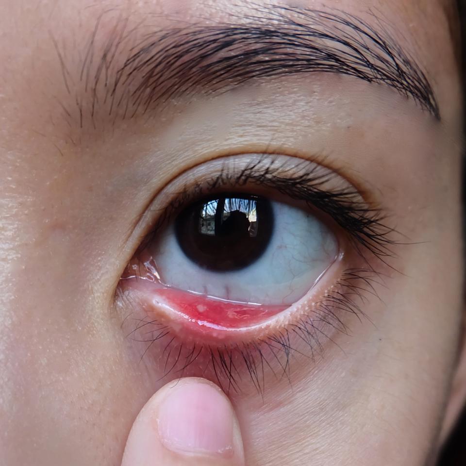 充血 真っ赤 の 目 目の充血の原因と治し方を解説!充血が治らないのはなぜ?